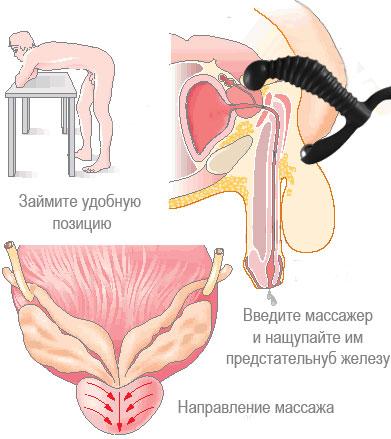 kak-pravilno-delat-analnuyu-masturbatsiyu
